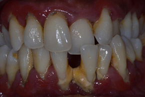 gum therapy before