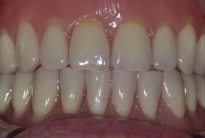 Removable dentures after