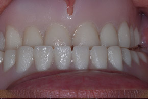Removable dentures before