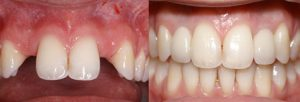 Dental Implants by Dr Mohsin Patel