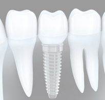 Dental Implant replacement for missing tooth