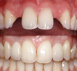 Fixed Dental implants