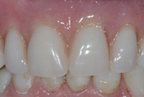Implant Denture after