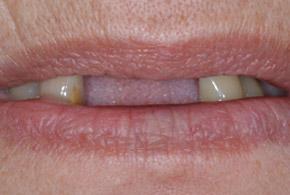 Implant Denture before