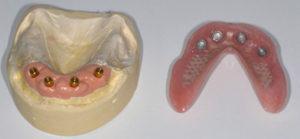 ImplantDentures2