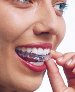 Image result for Invisalign in Leeds.