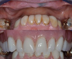 Implant retained denture Dr Mohsin Patel