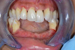 stabilised gum disease