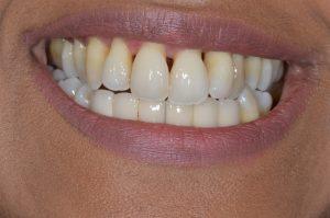 treating severe gum disease