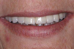 upper dental implants after