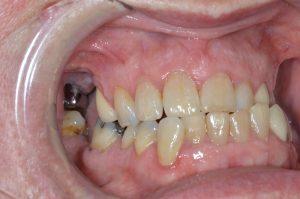 missing molar teeth