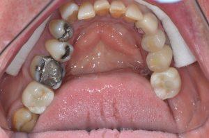 dental implants to replace molar teeth