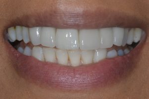 dental implant upper central incisor natural aesthetics