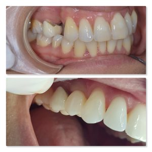 tooth replacement using dental implant