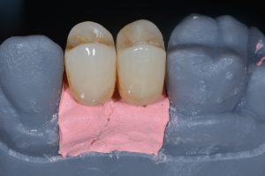 implant restoration digital