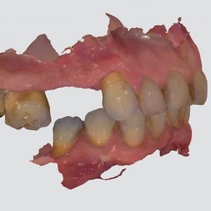 digital scan of dental arch