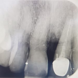 discharge infection with upper central incisor