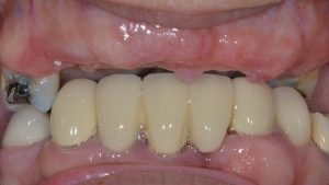 gum healing