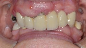 abscess and failing crowns