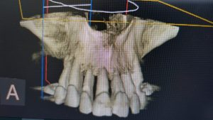 cbct image upper jaw