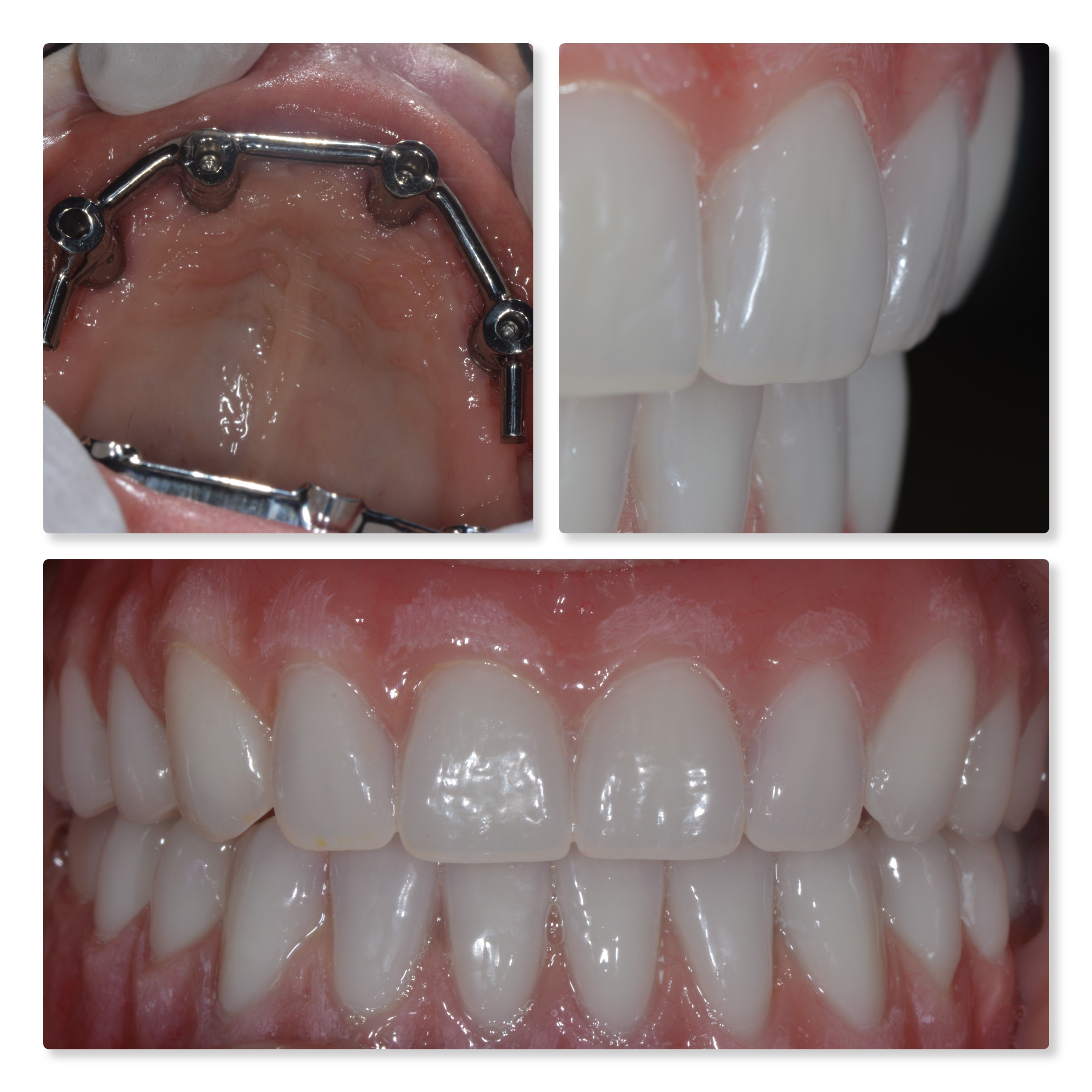 implant bar retained teeth