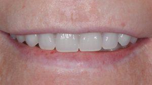 smile dental implants