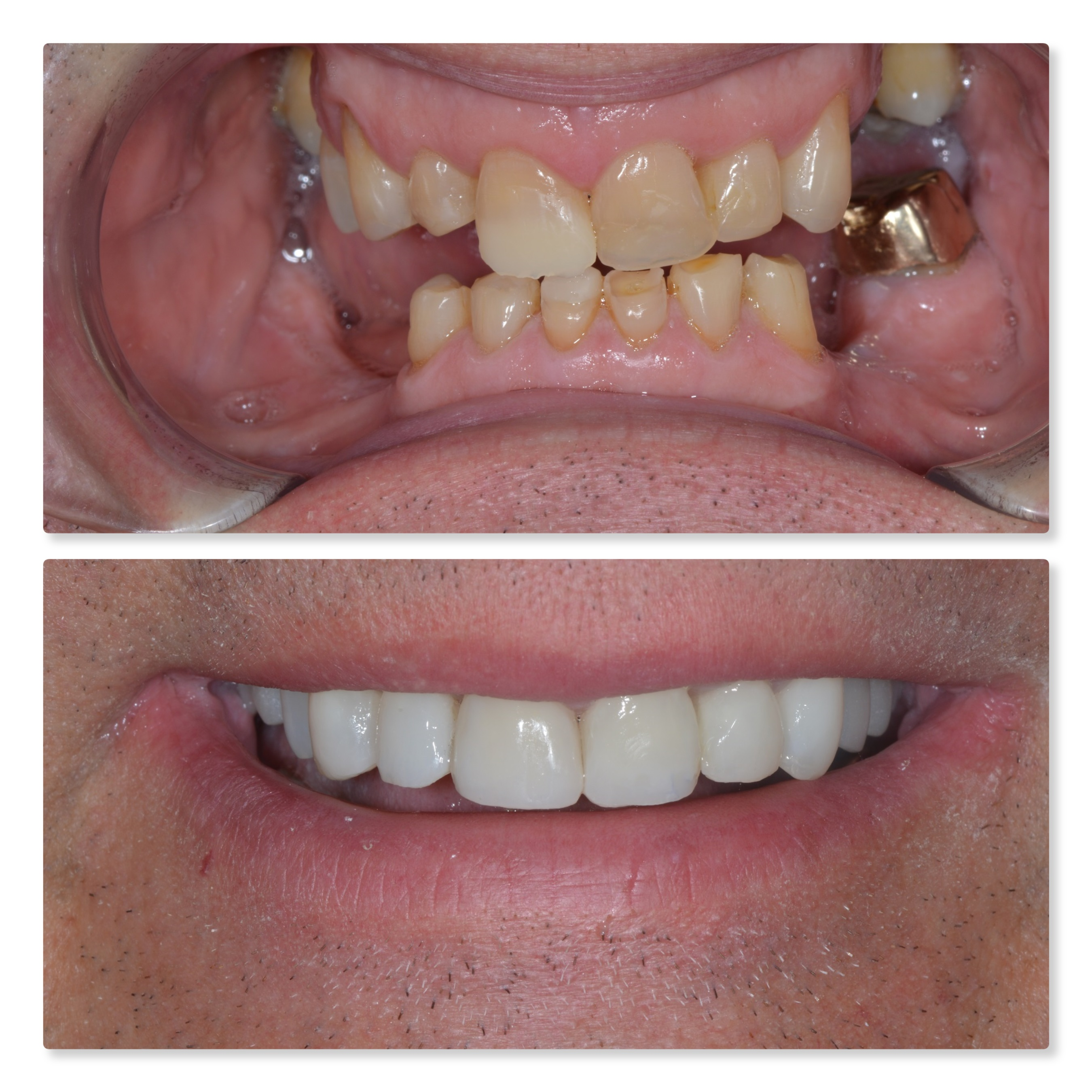 before and after dental implants with composite bonding