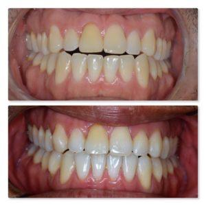 Invisalign anterior open bite