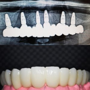 osseointegrated dental implants, full arch in Leeds