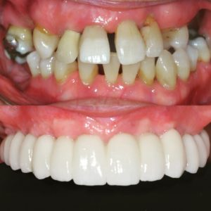 full arch fixed dental implants