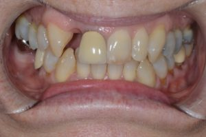 Missing upper right lateral incisor