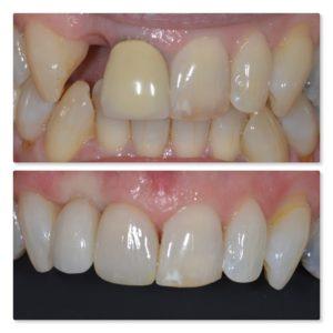 Cosmetic dental implant treatment