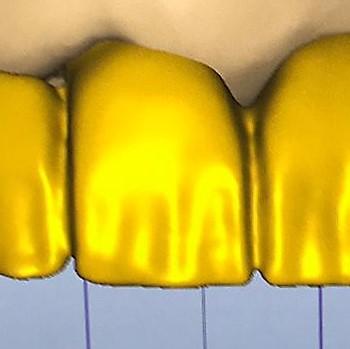 digital design teeth Infinity Dental Clinic
