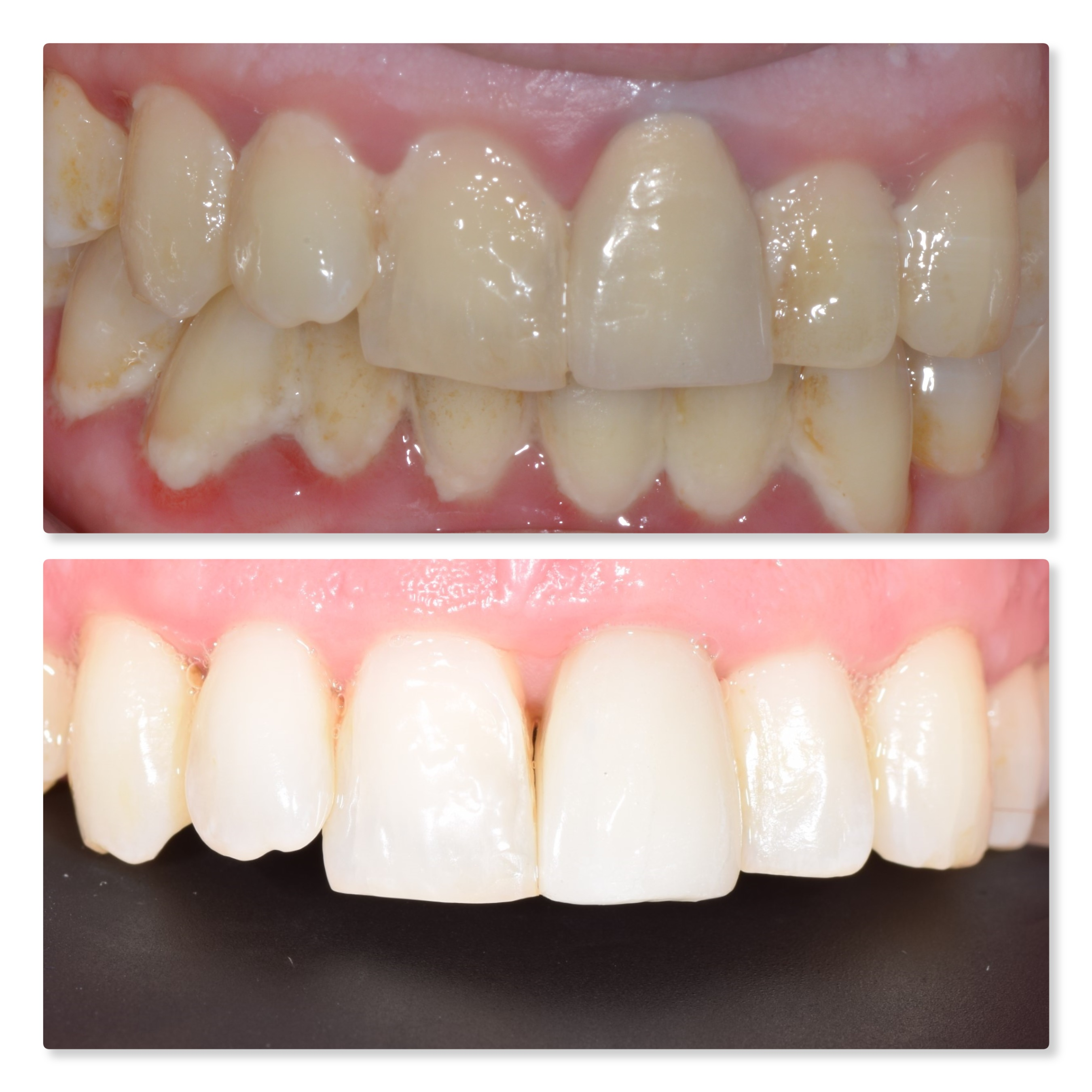 gum surgery crown lengthening and dental implant