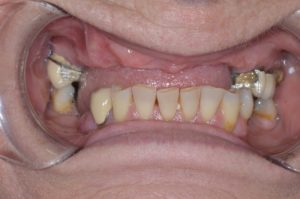 missing upper anterior teeth