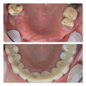 full arch with crowns and dental implants