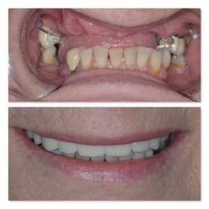 full arch with crowns and dental implants 1
