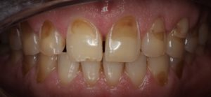 erosion of dental enamel