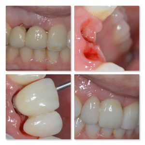 Gum shaping with dental implant at Infinity Dental Clinic Leeds