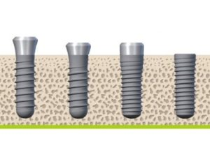 tissue level vs bone level dental implants straumann at Infinity Dental Clinic