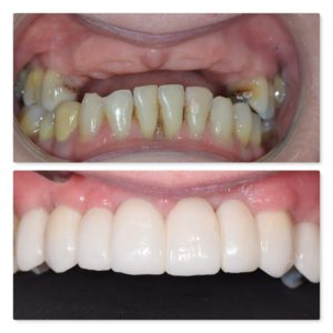 dental implants to replace missing upper teeth