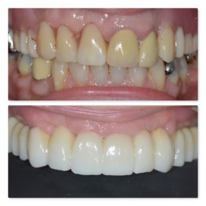 Full mouth dental implants Infinity Dental Clinic Leeds