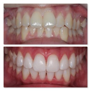 Invisalign and Teeth Whitening
