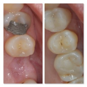 Dental Implant to replace missing molar composite filling Infinity Dental Clinic