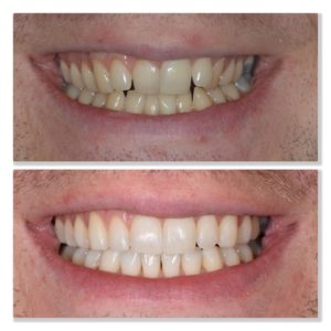 Invisalign orthodontic treatment straighten teeth