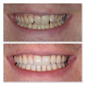 Invisalign orthodontic treatment straighten teeth