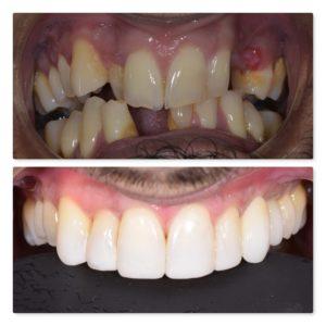 dental implant, whitening and composite bonding