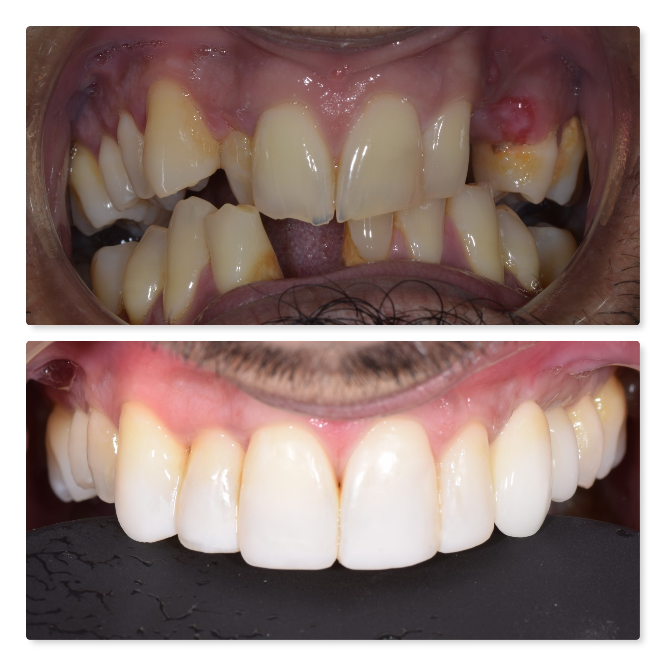 dental implant, whitening and composite bonding