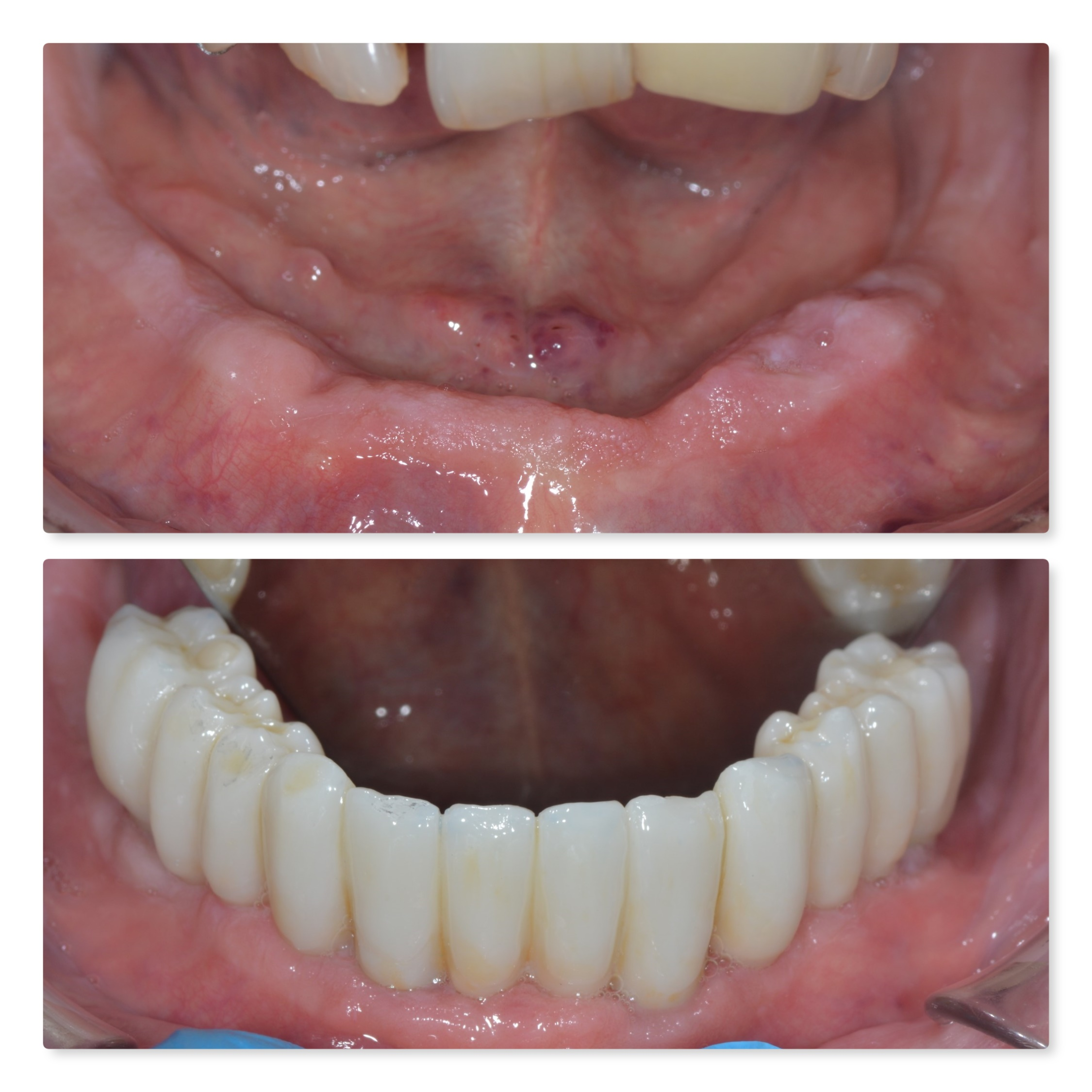 lower full arch fixed dental implants