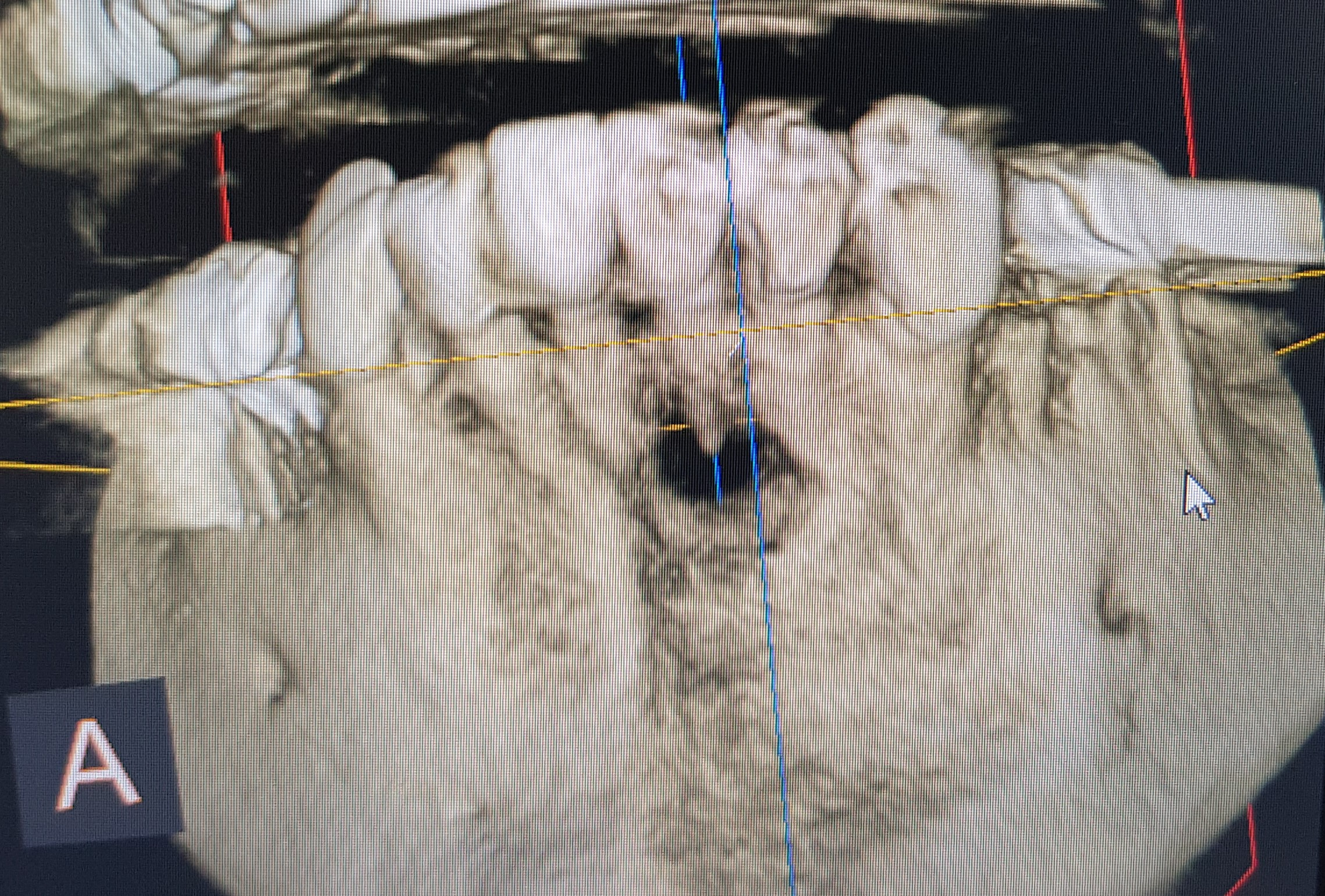 CBCT scan bone defect